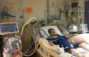 aneurysm, university of michigan hospital, munson medical center, peter henke